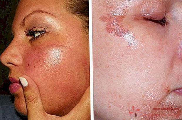 Фотоепилация на лицето (горната устна, брадичката и други..